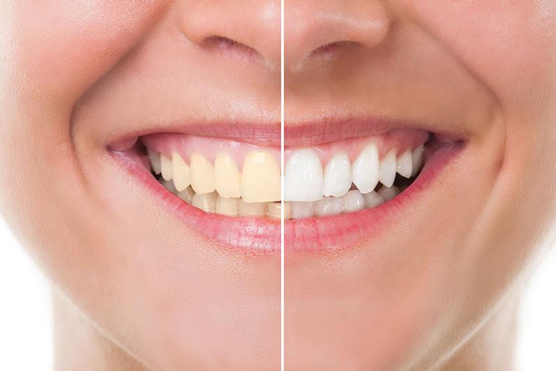 Teeth Whitening - Irving Park Dental, Chicago Dentist